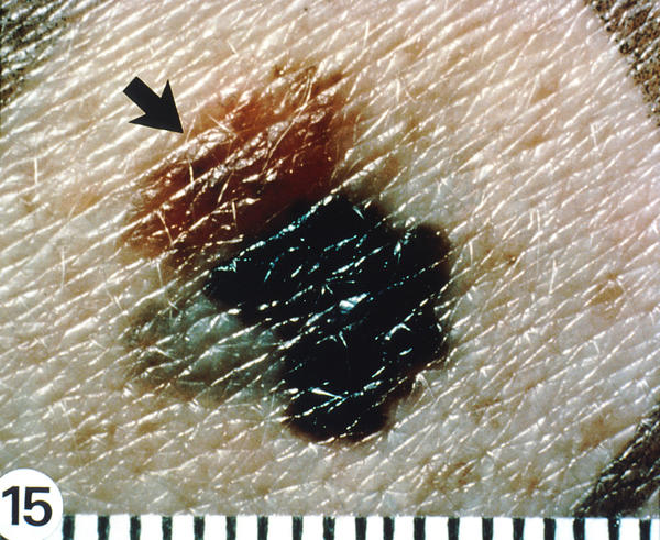 How can someone know if they have melanoma skin cancer?