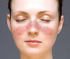 What is the definition or description of: butterfly rash?
