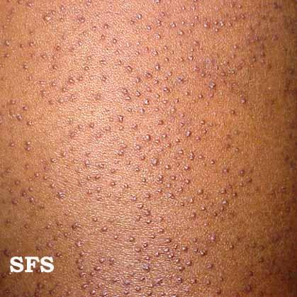What is the definition or description of: keratosis pilaris?
