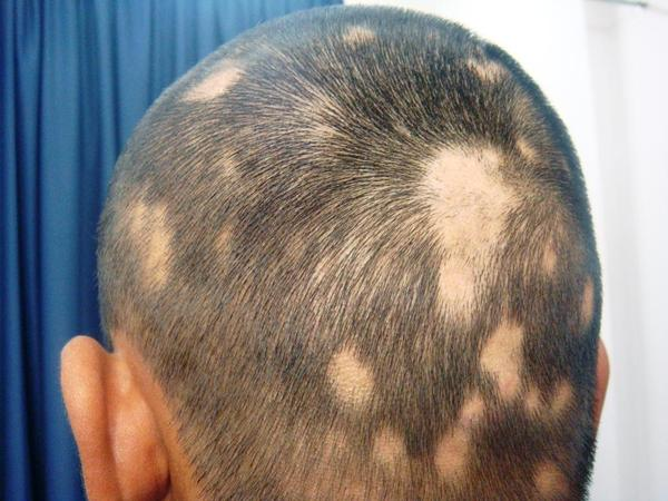 What is the definition or description of: alopecia areata?