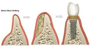 Is bone augmentation for dental implant a major procedure? How safe is it?