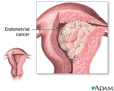 Is endometrical cancer the same as ulterine cancer?