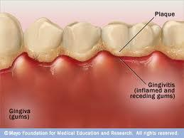 What is a black hairy tongue and gingivitis?