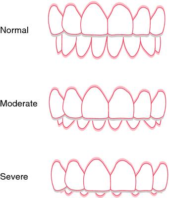 How do you know if you have a overbite?