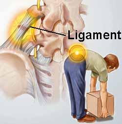 What is a sprained ligament?