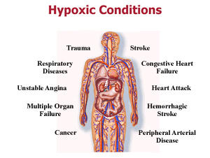 What is hypoxia and what does it mean if my doctor said I have a slight case of it?