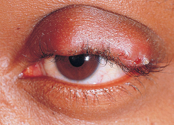 Is it possible to have a boil outside the eye crease which causes the swelling of the whole eye crease?