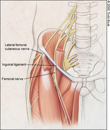 numbness after hernia surgery - answers on healthtap, Muscles
