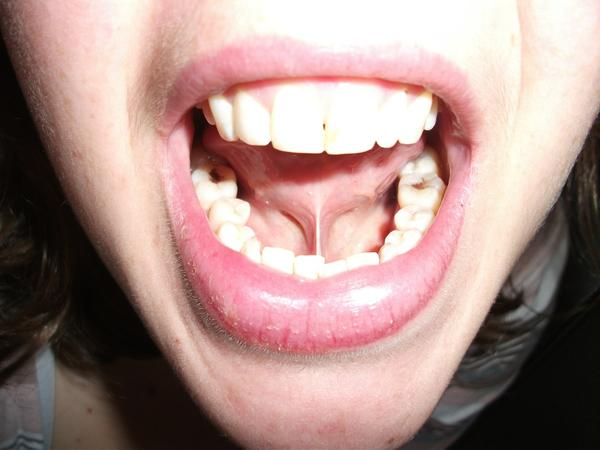 At 3 places in mouth I have thick skin with skin color and size of those is increasing. What could be problem. I m 21. I have h impacted teeth also?