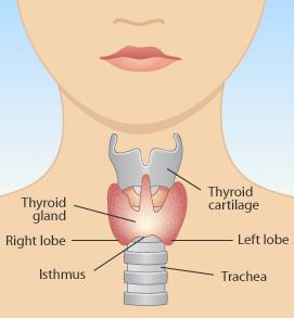 Not well, enlarged thyroid, two benign nodules that are autonomous, TSH low, T4 low end of normal, thyroglobulin antibodies present - thoughts?