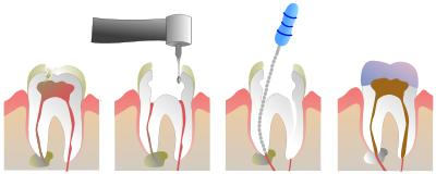 What is the risk of getting a root canal?