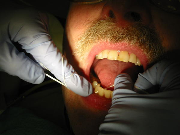 Do you still need to get wisdom teeth removed if they are not bothering you?