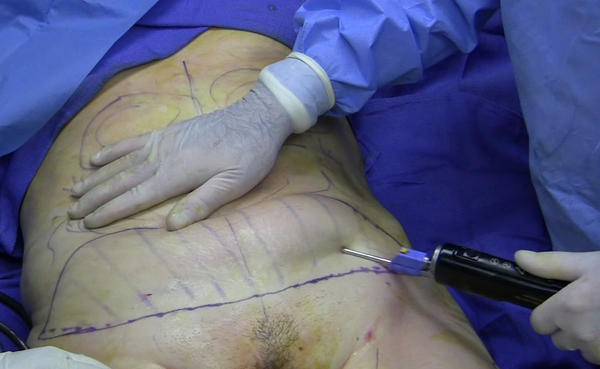 What is the definition or description of: ultrasonic liposuction?