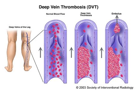 Ihave got compexl mass on my right ovarie also got DVT in my left leg does this mean the cacer has spread to my pelvis?