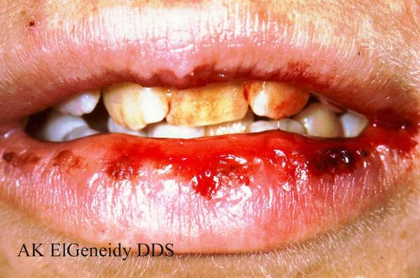 Can you get std's in your mouth that cause symptoms of inflamed sore gums that bleed constantly and receed from your teeth? Only started after oral.