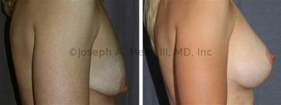 When should one do a breast reduction vs breast lift?