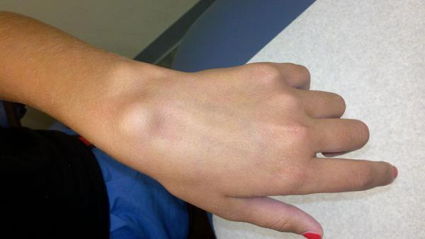How can I treat a painful ganglion cyst?