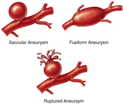How Dangerous Is an Aneurysm