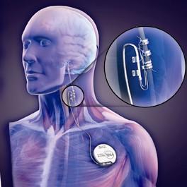 How effective is vagus nerve stimulation?