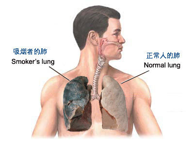 Mucous in chest cough