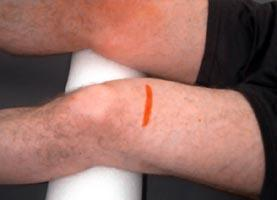 How can you tell if you have torn cartilage or a muscle in your knee?