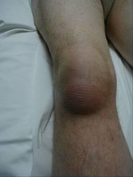 How long should I live with a bursa swelling on knee been over 2 months now and keeps coming back?