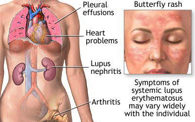With every lupus flare, along with all my other symptoms, i also get diarrhea & decreased appetite and nausea/vomiting. Is that common ?
