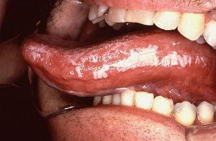 How do I know I have leukoplakia?