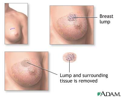What is the definition or description of: breast lump removal?