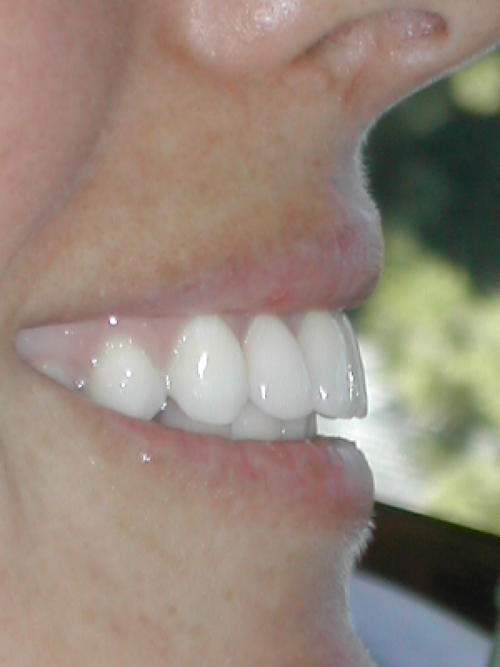 Will veneers make your smile bigger?