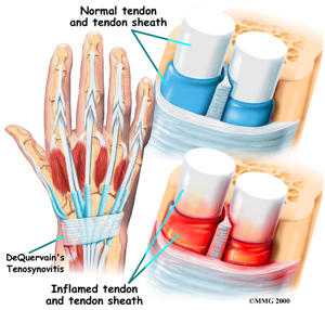 What homeopathic treatments can help with my tendinitis?