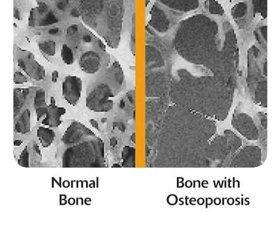 Is it true that only women suffer from bone loss and brittle bones?