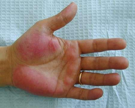 Is palmar erythema always associated with liver disease?