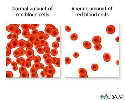 What is the definition or description of: blood loss?