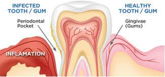 Can over stimulation of saliva cause blood in  saliva?