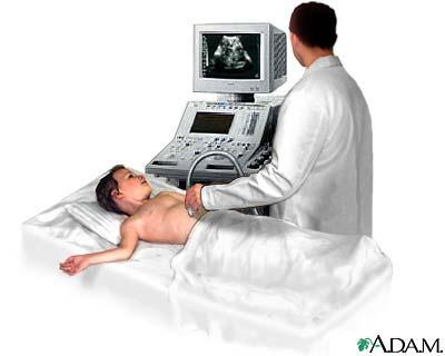 What is the definition or description of: ultrasound of abdomen shows bull's eye?