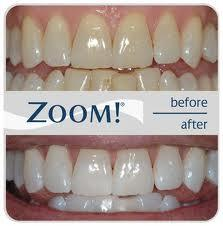 How much true in the role of hydrogen peroxide whitening tooth?