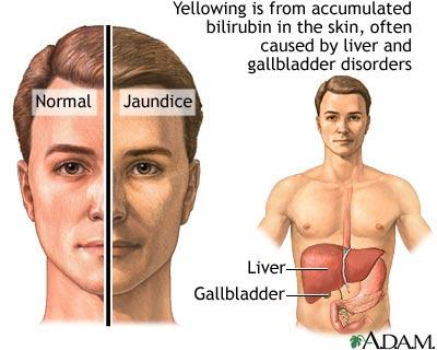 Can someone have liver failure if they have jaundice, even with completely normal cmp?