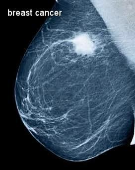 Can mammograms detect breast cancers?