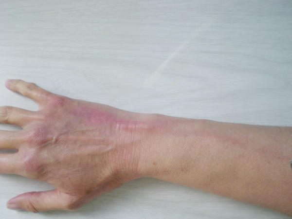Hard Vein After Iv