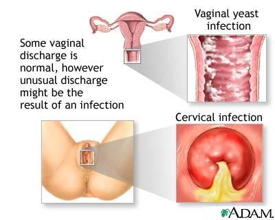 I need help managing chronic vulvovaginal candidiasis. I take fluconazole when I have an infection but i get up to 7 infections a year! help!?