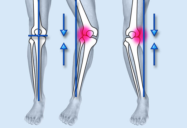 Should i get surgery for my bow legs (genu varum)?