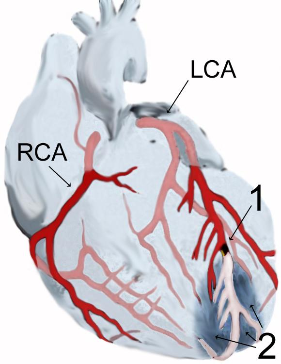 Can you tell me the difference between a heart failure from myocardial infarction?