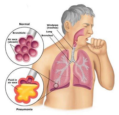 What are some of the most telltale signs of pneumonia?