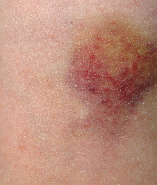 Cyst and bruise near anus