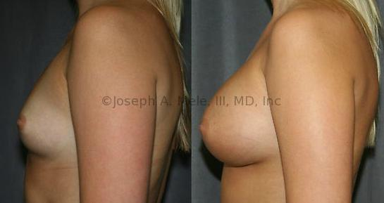 What is the definition or description of: cosmetic breast surgery?