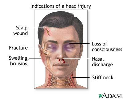 What is the definition or description of: head trauma?