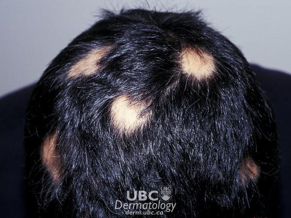 How do I know if i has alopecia areata.And what labotary texts should I have to done to check wheather I have alopecia.?
