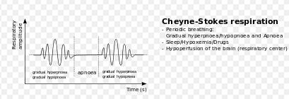 Is cheyne stokes respiration , a irregular breathing or a rhythmic breathing?
