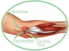 What is preventing my tennis elbow from healing?